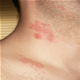 norske sexannonser herpes blemmer